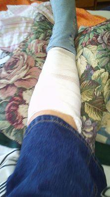 torn calf muscle bandaged